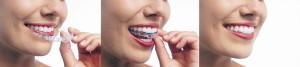 Invisalign teeth whitening